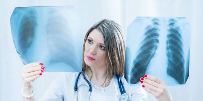 Всеукраинский день борьбы с заболеванием на туберкулез